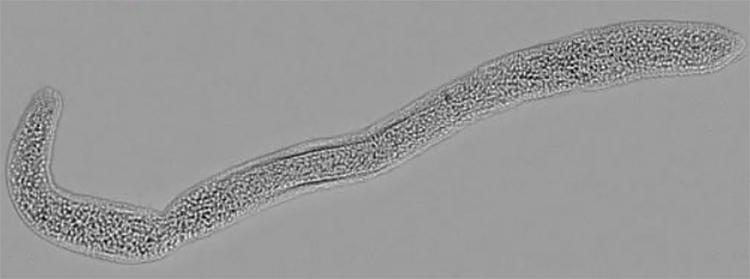 A Mature Buddenbrockia; From Myxozoa by Alexander Gruhl