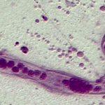 Dicyemida: Tiny Marine Parasites of Octopus and Squids
