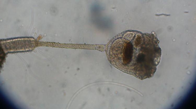 Entoprocta under microscope