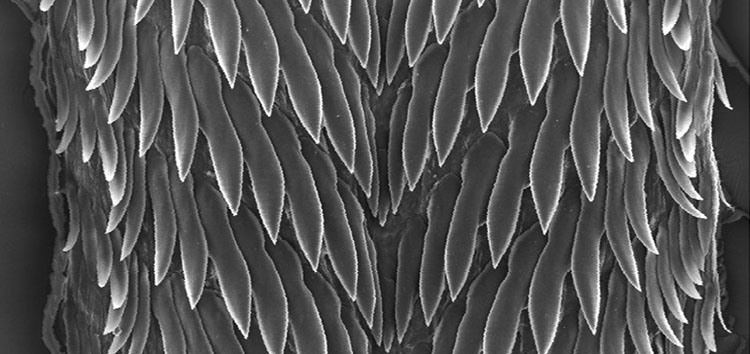 Radula of Perrottetia dermapyrrhosa
