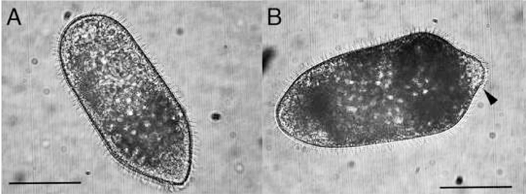 Two female Rhopalura xenoturbellaria