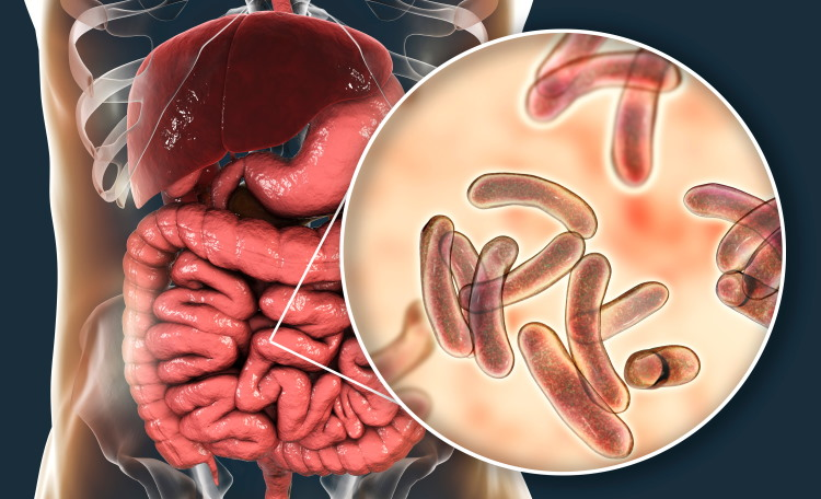 which diseases caused by bacteria? cholera