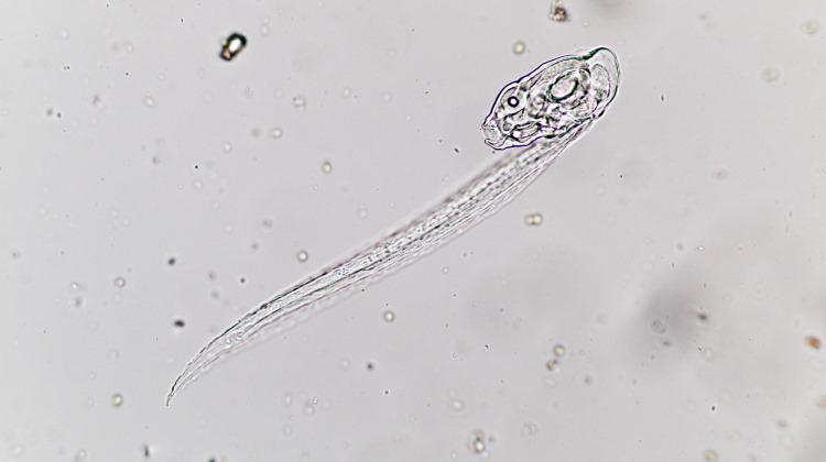 larvacea under microscope