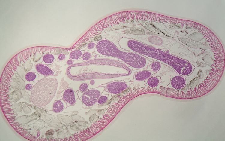 nematode worm cross section
