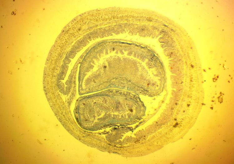 proboscis worm anatomy cross section