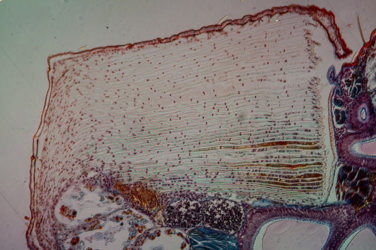 book lung under microscope