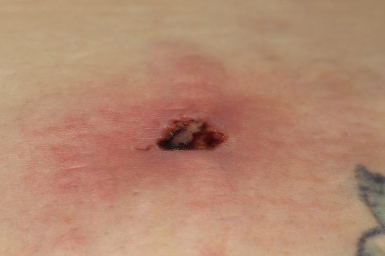 recluse spider bite